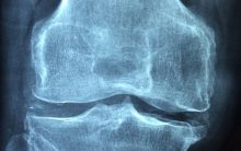 Enhanced bone growth could lead to new treatments for osteoporosis
