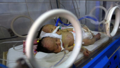 Photo of Yemeni conjoined twins die in blockaded Sanaa: rebels