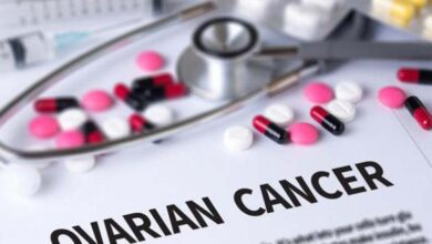 Photo of New test can eliminate need for surgery to diagnose ovarian cancer