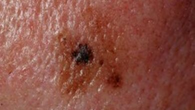 Photo of 5 things you need to know about melanoma