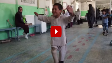 Photo of Afghanistan: 4-year-old amputee Rahman begins dancing after he receives artificial leg