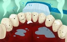 Brush teeth to postpone Alzheimer's disease