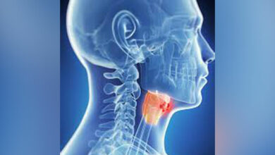 Photo of New technique can predict complications after larynx cancer surgery