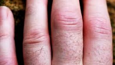 Photo of Can rheumatoid arthritis be delayed or prevented?