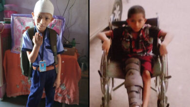 Photo of MNJ hospital performs critical bone cancer surgery on an 8-year-old Warangal boy; he resumes going to school