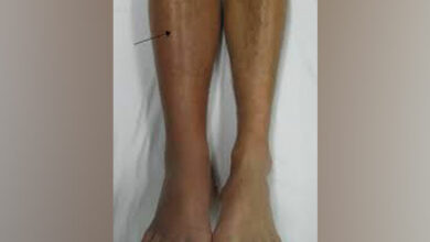 Photo of Study suggests pain-free exercise for patients with clogged leg arteries