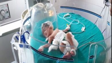 Photo of Stray dogs pull out baby girl dumped in drain; baby in hospital