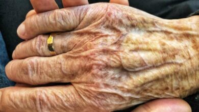 Photo of Discovery opens door for new treatment for Parkinson's diseases
