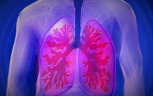 TB survivors at higher risk of developing lung damage
