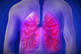Photo of TB survivors at higher risk of developing lung damage