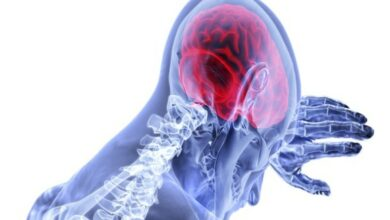 Photo of Silent strokes common in older patients: Study