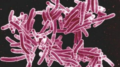 Photo of Indian firm develops test to detect drug-resistant TB mutation