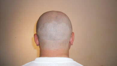 Photo of Here comes a device to regrow hair on bald head