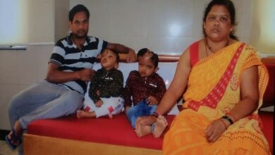 Photo of After two-year struggle, Odisha conjoined twins to return home
