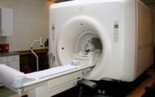 Advanced MRI brain scan can predict stroke-related dementia