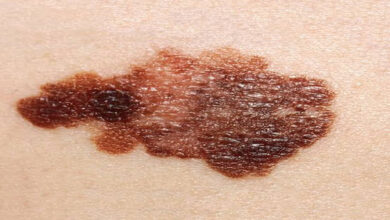 Photo of Immunotherapy drugs when combined prevent melanoma progression