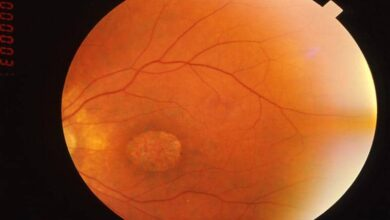 Photo of Study finds treatment for blindness causing syndrome
