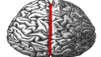 Photo of Autistic people have symmetrical brain hemispheres: Study