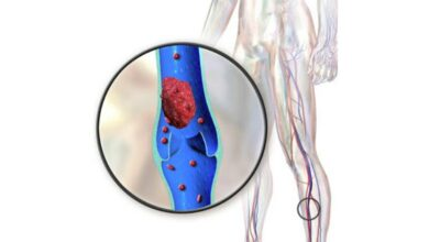 Photo of World Thrombosis Day:Understanding hidden dangers of blood clots