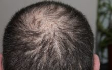 Air pollution may result in hair loss
