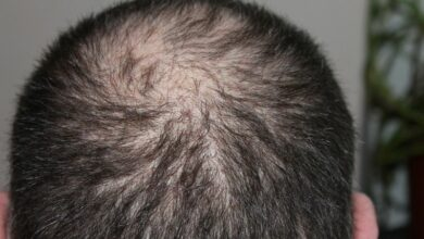 Photo of Air pollution may result in hair loss