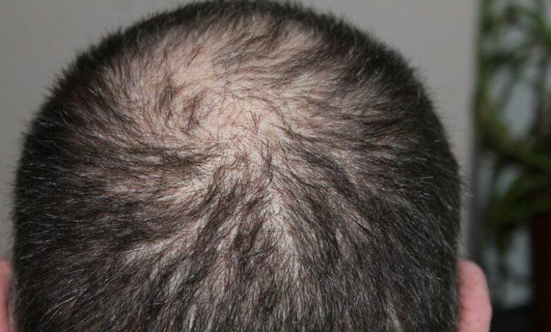 Air pollution may result in hair loss