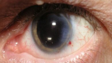 Photo of Here's another reason for you to get cataract surgery