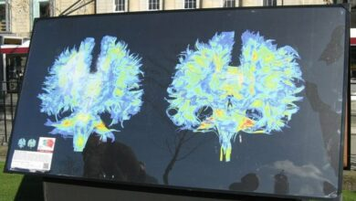 Photo of Researchers using MRI reveals brain damage in obese teens