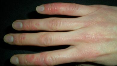 Photo of Bioelectric stimulations can be used to treat skin lesions:study