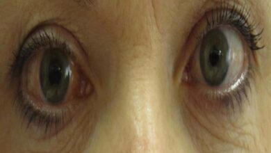 Photo of Genetic test developed to predict onset of glaucoma