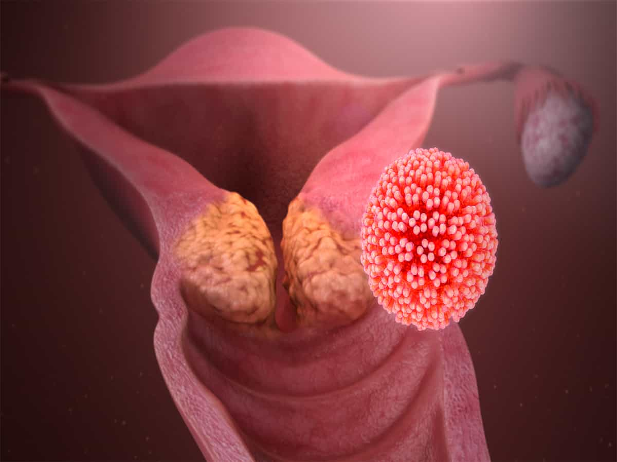 Facts on Cervical Cancer and treatment options