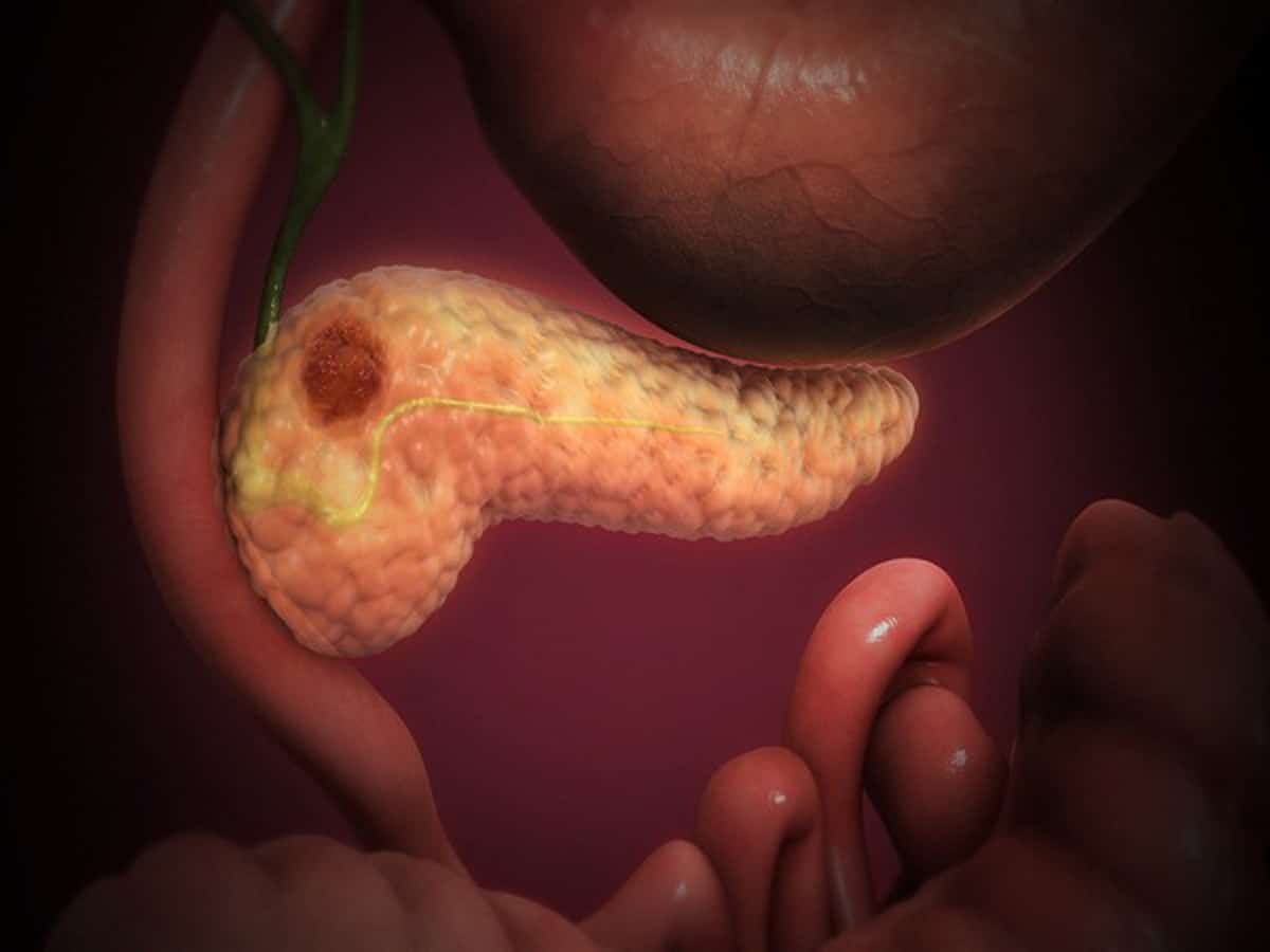 Foot and mouth disease virus to help treat pancreatic cancer thumbnail