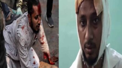 Photo of Zubair goes on record: Those who attacked me were 'beasts'