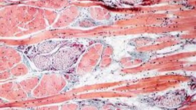 Photo of Study reveals how skin cells prepare to heal wounds