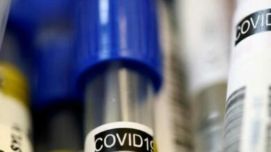 COVID-19 deaths
