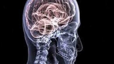 Photo of Neurological emergencies should not be delayed: Neurologist