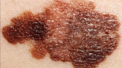 Photo of Scientists get a better understanding of melanoma