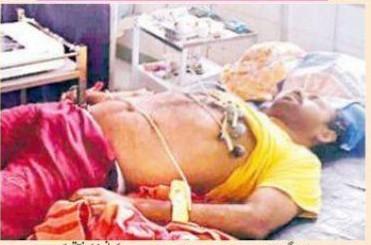dead body of covid victim