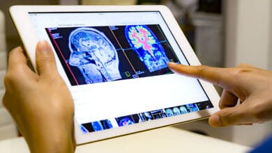 Photo of COVID-19 can cause delirium, brain inflammation: Study