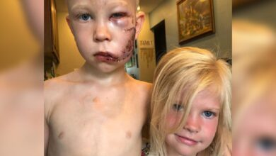 Photo of 6-yr-old gets 90 stitches after saving sister from dog attack