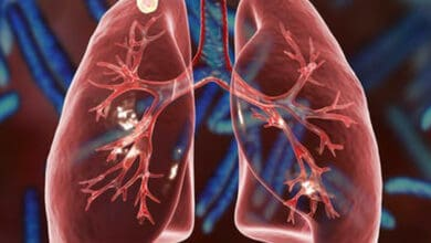 Photo of COVID-19 may lead to 95K extra TB deaths in India in 5 years: Study