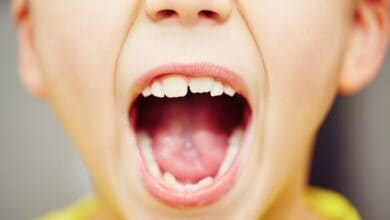 Photo of Gum disease may up mouth, stomach cancer risk: Study