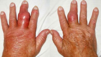 Photo of Gout cases increasing at an alarming rate globally: Study
