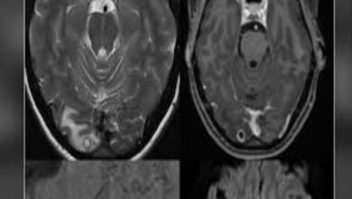 Photo of Australian woman discovers tapeworm larvae in her brain inducing headaches