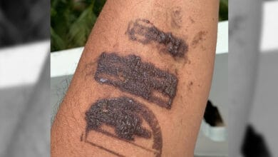 Photo of Quarantine stamps at airports causing allergic reactions on the skin!