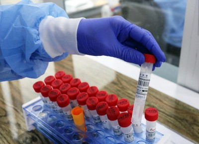 Africa's Covid-19 cases cross 2.4 mn