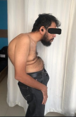 Man stands straight after 15 years, courtesy Hyderabad hospital