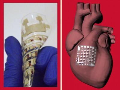 Novel rubbery cardiac patch can monitor, treat heart disease