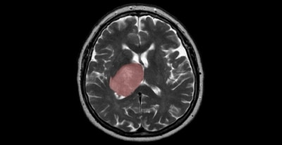 Exposure to common food-borne parasite linked to rare brain cancer
