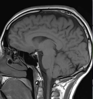 New drug-delivery system could treat brain disorders